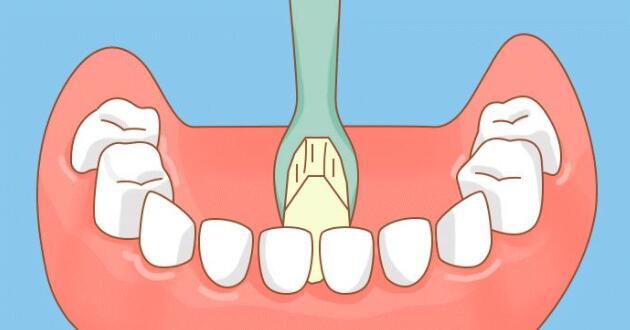 门牙区内侧刷牙