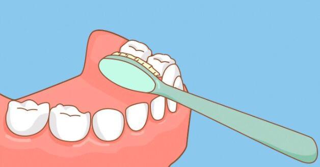 磨牙区刷牙